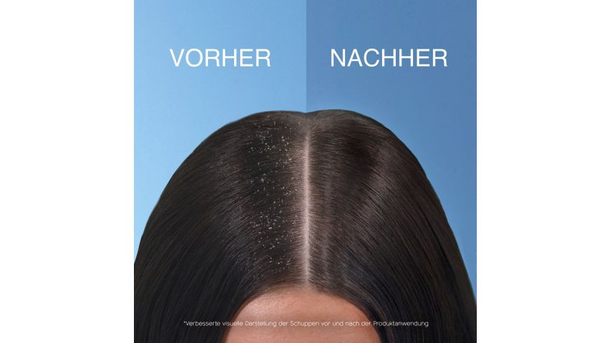 Head Shoulders Anti Schuppen Shampoo Tiefenpflege mit Kokosnuss