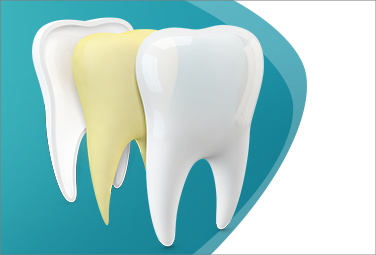 Was ist Zahnschmelzabbau?