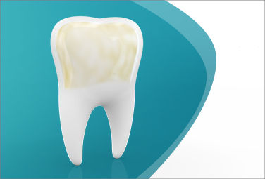 Die Auswirkungen von Zahnschmelzabbau
